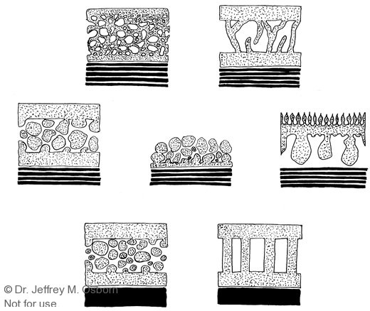 Pollen-wall-types